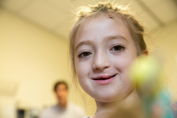 Little girl with repaired cleft palate looking directly at the camera.