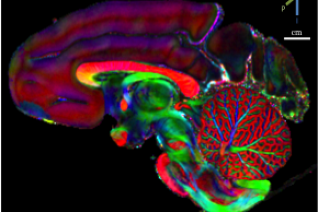 Imaging of cerebellar circuitry